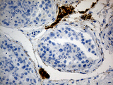 Immunohistochemical staining of paraffin-embedded Human testicle tissue within the normal limits using anti-MGARP mouse monoclonal antibody. (Heat-induced epitope retrieval by 1mM EDTA in 10mM Tris buffer. (pH8.5) at 120°C for 3 min. (1:500)