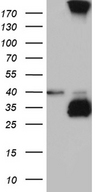 C4orf49 / OSAP Antibody - HEK293T cells were transfected with the pCMV6-ENTRY control. (Left lane) or pCMV6-ENTRY MGARP. (Right lane) cDNA for 48 hrs and lysed. Equivalent amounts of cell lysates. (5 ug per lane) were separated by SDS-PAGE and immunoblotted with anti-MGARP. (1:2000)