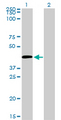 C5AR1 / CD88 / C5a Receptor Antibody - Western Blot analysis of C5R1 expression in transfected 293T cell line by C5R1 monoclonal antibody (M02), clone 4E2.Lane 1: C5R1 transfected lysate(39.3 KDa).Lane 2: Non-transfected lysate.
