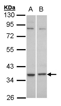 Sample (30 ug of whole cell lysate). A: HeLa, B: Molt-4 . 10% SDS PAGE. C5L2 antibody diluted at 1:1000