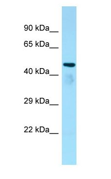 C6orf134 / ATAT1 antibody Western Blot of Rat Kidney.  This image was taken for the unconjugated form of this product. Other forms have not been tested.