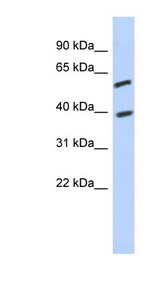 C6orf146 Antibody - C6orf146 antibody Western blot of Jurkat lysate. This image was taken for the unconjugated form of this product. Other forms have not been tested.