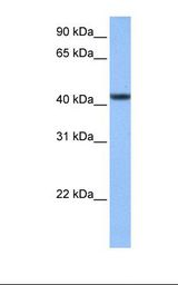 C8orf34 Antibody - Hela cell lysate. Antibody concentration: 1.0 ug/ml. Gel concentration: 12%.  This image was taken for the unconjugated form of this product. Other forms have not been tested.