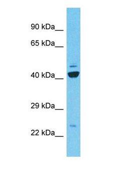 C9orf135 Antibody - Western blot of C9orf135 Antibody with human 786-0 Whole Cell lysate.  This image was taken for the unconjugated form of this product. Other forms have not been tested.