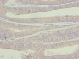 C9orf43 Antibody - Immunohistochemistry of paraffin-embedded human endometrial cancer using C9orf43 Antibody at dilution of 1:100