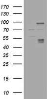 HEK293T cells were transfected with the pCMV6-ENTRY control (Left lane) or pCMV6-ENTRY CA12 (Right lane) cDNA for 48 hrs and lysed. Equivalent amounts of cell lysates (5 ug per lane) were separated by SDS-PAGE and immunoblotted with anti-CA12.