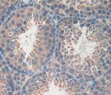 DAB staining on fromalin fixed paraffin- embedded testis tissue