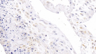 DAB staining on fromalin fixed paraffin- embedded prostate gland tissue