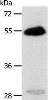 CA14 / Carbonic Anhydrase XIV Antibody - Western blot analysis of Human liver cancer tissue, using CA14 Polyclonal Antibody at dilution of 1:400.