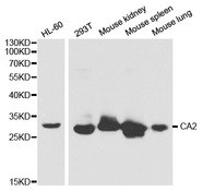 CA2 / Carbonic Anhydrase II Antibody - Western blot analysis of extracts of various cell lines, using CA2 antibody at 1:1000 dilution. The secondary antibody used was an HRP Goat Anti-Rabbit IgG (H+L) at 1:10000 dilution. Lysates were loaded 25ug per lane and 3% nonfat dry milk in TBST was used for blocking.