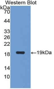 Western blot of recombinant CA6 / Carbonic Anhydrase 6.