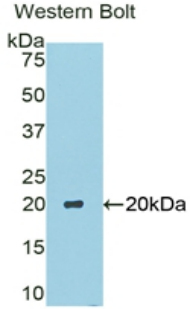 Western blot of recombinant CA6 / Carbonic Anhydrase 6.  This image was taken for the unconjugated form of this product. Other forms have not been tested.