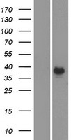 CA6 / Carbonic Anhydrase 6 Protein - Western validation with an anti-DDK antibody * L: Control HEK293 lysate R: Over-expression lysate