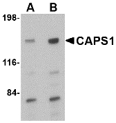 Western blot of CAPS1 in rat brain tissue lysate with CAPS1 antibody at (A) 0.5 and (B) 1 ug/ml.