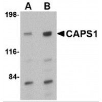 Western blot analysis of CAPS1 in rat brain tissue lysate with CAPS1 antibody at (A) 0.5 and (B) 1 µg/mL.