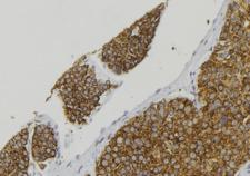 CALCA Antibody - 1:100 staining human pancreas tissue by IHC-P. The sample was formaldehyde fixed and a heat mediated antigen retrieval step in citrate buffer was performed. The sample was then blocked and incubated with the antibody for 1.5 hours at 22°C. An HRP conjugated goat anti-rabbit antibody was used as the secondary.