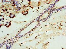 CALCB Antibody - Immunohistochemistry of paraffin-embedded human breast cancer using antibody at 1:100 dilution.