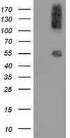 CALCOCO2 Antibody - HEK293T cells were transfected with the pCMV6-ENTRY control (Left lane) or pCMV6-ENTRY CALCOCO2 (Right lane) cDNA for 48 hrs and lysed. Equivalent amounts of cell lysates (5 ug per lane) were separated by SDS-PAGE and immunoblotted with anti-CALCOCO2.