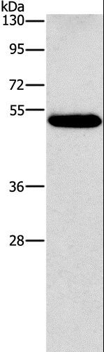 Western blot analysis of Human lung cancer tissue, using CALCRL Polyclonal Antibody at dilution of 1:550.