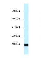 CALML3 antibody Western blot of HeLa Cell lysate. Antibody concentration 1 ug/ml.  This image was taken for the unconjugated form of this product. Other forms have not been tested.