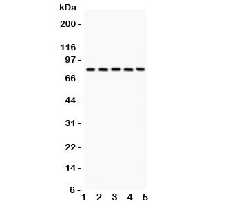 Calpain Antibody - Western blot testing of Calpain antibody and Lane 1: rat lung; 2: mouse lung; 3: human A549; 4: (h) COLO320; 5: (h) Jurkat. Predicted/expected size ~82KD