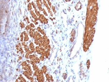 Calponin Antibody - Formalin-fixed, paraffin-embedded rat uterus stained with anti-Calponin antibody (CNN1/832).  This image was taken for the unmodified form of this product. Other forms have not been tested.