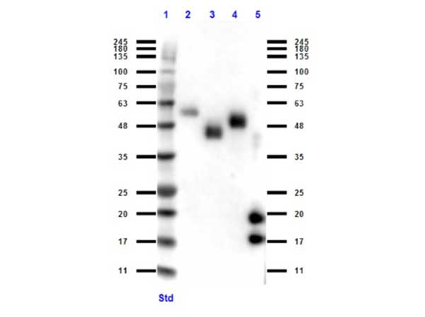 Camelid VhH Ig Antibody - Western Blot of rabbit anti-VHH antibody. Lane 1: MW ladder (opal pre-stained). Lane 2: Llama IgG1 protein. Lane 3: Llama IgG2 protein. Lane 4: Llama IgG3 protein. Lane 5: VhH protein. Load: 50 ng per lane. Primary antibody: VHH antibody at 1:1000 for overnight at 4°C. Secondary antibody: rabbit secondary HRP antibody at 1:40,000 for 45 min at RT. Block: BlockOut overnight at 4°C. Predicted/Observed size: expect 15 and 18 kda band in VHH protein and reactivity with Llama IgG isotypes.
