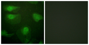 Immunofluorescence analysis of HeLa cells, using CaMK1-alpha (Phospho-Thr177) Antibody. The picture on the right is blocked with the phospho peptide.