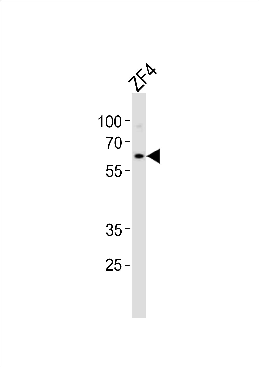 Western blot of lysate from ZF4 cell line, using (DANRE) camk2d2 Antibody. Antibody was diluted at 1:1000. A goat anti-rabbit IgG H&L (HRP) at 1:10000 dilution was used as the secondary antibody. Lysate at 35ug.