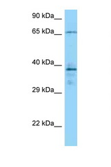 CAMK2G antibody Western blot of 1 Cell lysate. Antibody concentration 1 ug/ml.  This image was taken for the unconjugated form of this product. Other forms have not been tested.