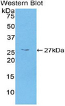 CAMK2G / CaMK II Gamma Antibody - Western blot of recombinant CAMK2G / CAMK.  This image was taken for the unconjugated form of this product. Other forms have not been tested.