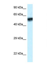 CAMK4 antibody LS-C145334 Western blot of ACHN Cell lysate. Antibody concentration 1 ug/ml.  This image was taken for the unconjugated form of this product. Other forms have not been tested.