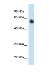 CAMKK1 / CaMKK antibody LS-C145453 Western blot of 293T Cell lysate. Antibody concentration 1 ug/ml.  This image was taken for the unconjugated form of this product. Other forms have not been tested.