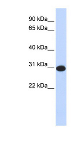 CAMLG antibody Western blot of Fetal Liver lysate. This image was taken for the unconjugated form of this product. Other forms have not been tested.