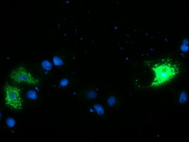 Anti-CAMLG mouse monoclonal antibody immunofluorescent staining of COS7 cells transiently transfected by pCMV6-ENTRY CAMLG.