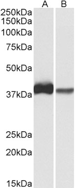 CAPG Antibody (0.3µg/ml) staining of U937 (A) and Human Spleen (B) lysates (35µg protein in RIPA buffer). Primary incubation was 1 hour. Detected by chemiluminescence.
