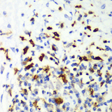 Immunohistochemistry of paraffin-embedded human liver cancer tissue.