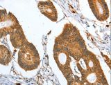 Immunohistochemistry of paraffin-embedded Human colon cancer using CAPG Polyclonal Antibody at dilution of 1:35.