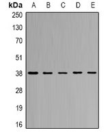Western blot analysis of CapG expression in SW620 (A); THP1 (B); mouse lung (C); mouse spleen (D); rat heart (E) whole cell lysates.