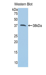 Western blot of recombinant CAPN1 / Calpain 1.  This image was taken for the unconjugated form of this product. Other forms have not been tested.
