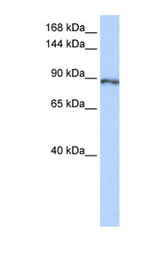 CAPN15 / SOLH Antibody - SOLH antibody Western blot of Fetal Lung lysate. This image was taken for the unconjugated form of this product. Other forms have not been tested.