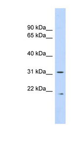 CAPNS1 / Calpain S1 antibody LS-C116793 Western blot of Fetal Lung lysate.  This image was taken for the unconjugated form of this product. Other forms have not been tested.