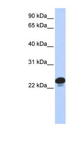 CAPS antibody Western blot of 293T cell lysate. This image was taken for the unconjugated form of this product. Other forms have not been tested.
