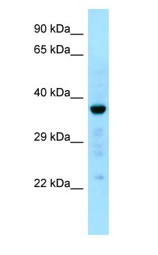 CAPZA1 / CAPZ antibody Western Blot of Fetal Liver.  This image was taken for the unconjugated form of this product. Other forms have not been tested.