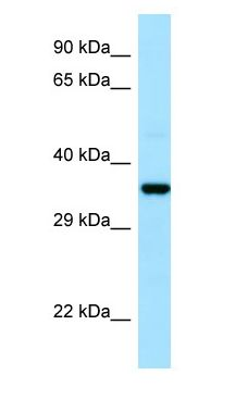 CAPZA1 / CAPZ antibody Western Blot of Fetal Lung.  This image was taken for the unconjugated form of this product. Other forms have not been tested.