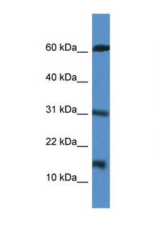 CARD17 / INCA Antibody - CARD17 antibody Western blot of Jurkat Cell lysate. Antibody concentration 1 ug/ml.  This image was taken for the unconjugated form of this product. Other forms have not been tested.