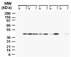 CARD8 / Cardinal / TUCAN Antibody - Western blot of TUCAN in five matched pairs of normal colonic mucosa (N) and colon carcinoma (T) using Polyclonal Antibody to TUCAN/CARD8 at 1:2000. Specimens were normalized for total protein content. Each set of N and T is tissue lysate from the same patient.