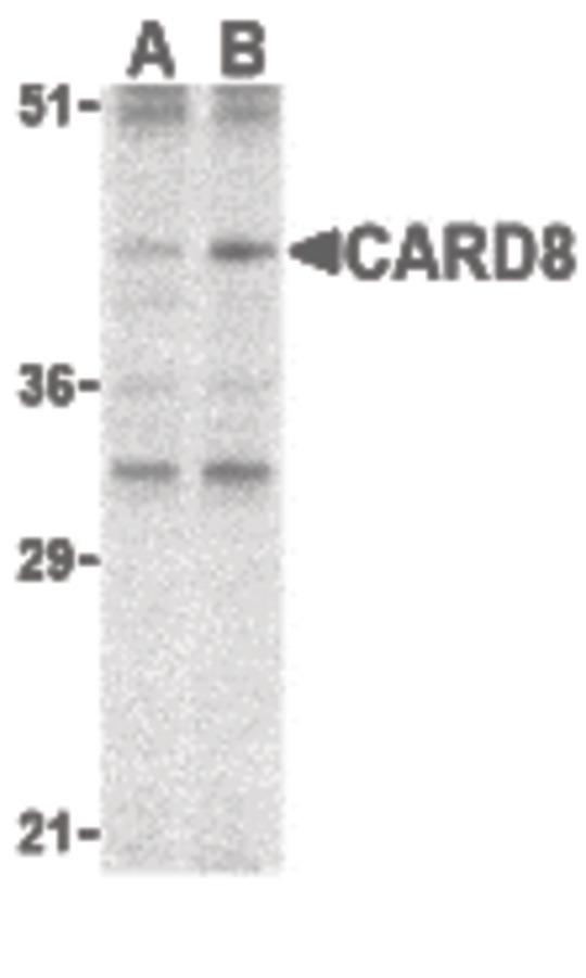 Western blot of CARD8 expression in K562 cell lysate with CARD8 antibody at (A) 2 and (B) 4 ug /ml.