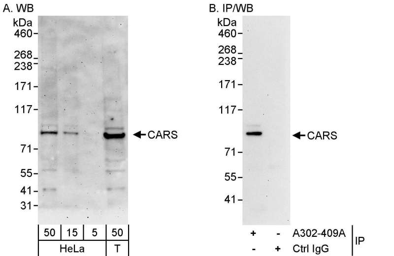 Detection of Human CARS by Western Blot and Immunoprecipitation. Samples: Whole cell lysate from HeLa (5, 15 and 50 ug for WB; 1 mg for IP, 20% of IP loaded) and 293T (T; 50 ug) cells. Antibodies: Affinity purified rabbit anti-CARS antibody used for WB at 0.4 ug/ml (A) and 1 ug/ml (B) and used for IP at 3 ug/mg lysate. Detection: Chemiluminescence with exposure times of 3 minutes (A) and 30 seconds (B).