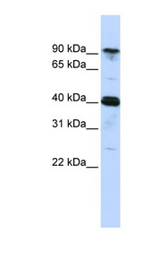CARS antibody LS-C101832 Western blot of MCF7 cell lysate.  This image was taken for the unconjugated form of this product. Other forms have not been tested.
